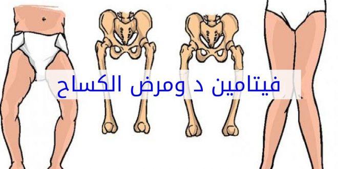 صورة مرض الكساح , علامات واعراض مرض الكساح