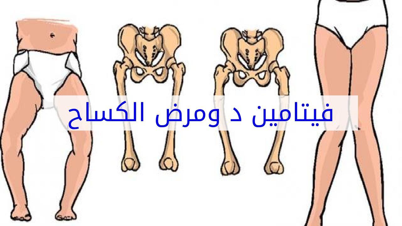 صور مرض الكساح , علامات واعراض مرض الكساح