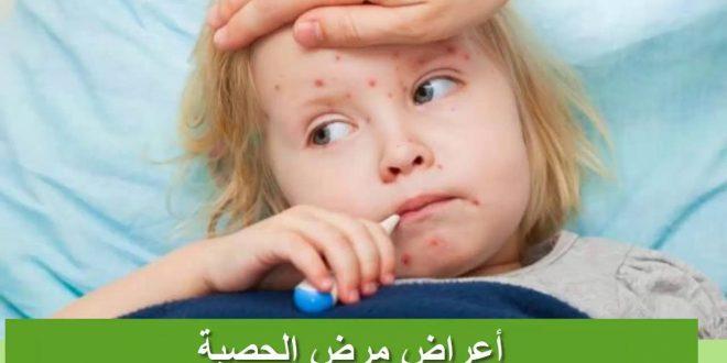 صور مرض الحصبة , اعراض واساب مرض الحصبه