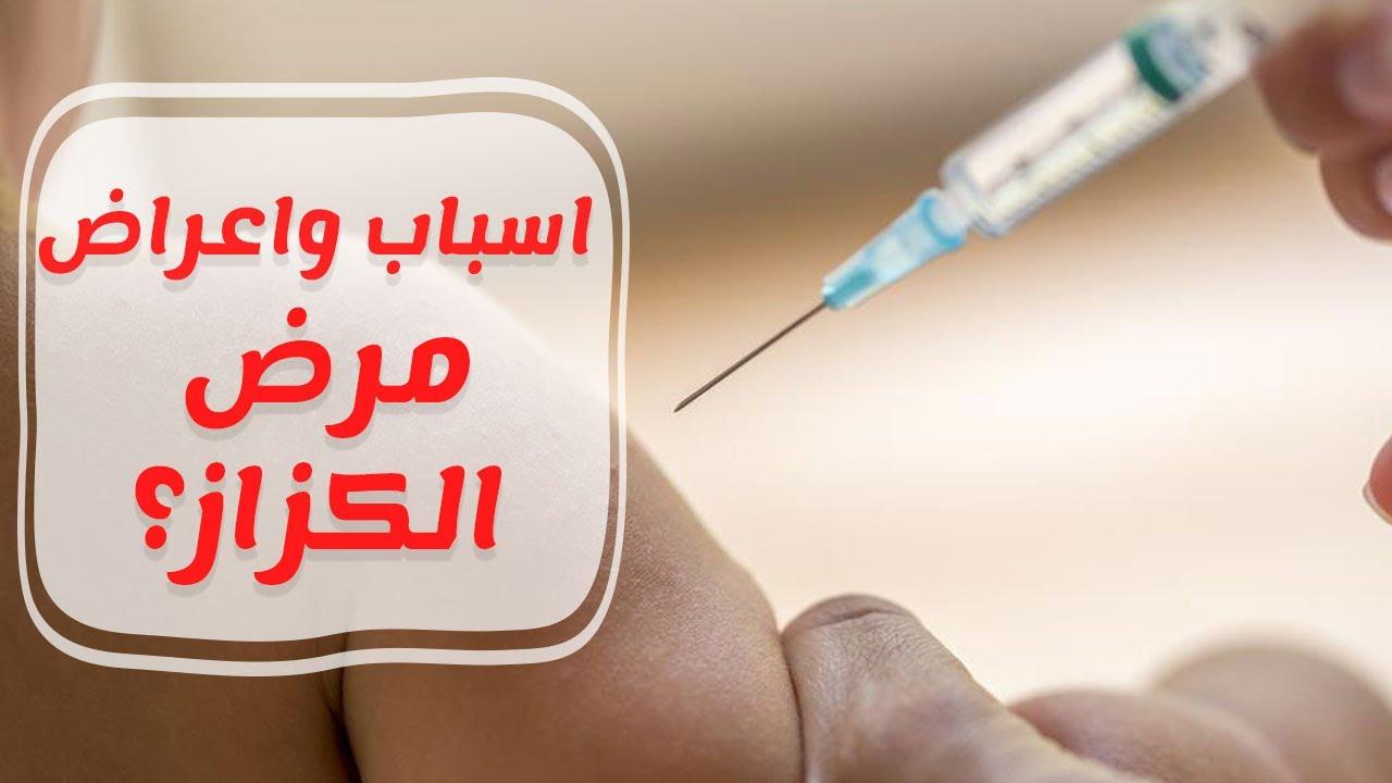 صورة مرض الكزاز , اعراض مرض الكزاز