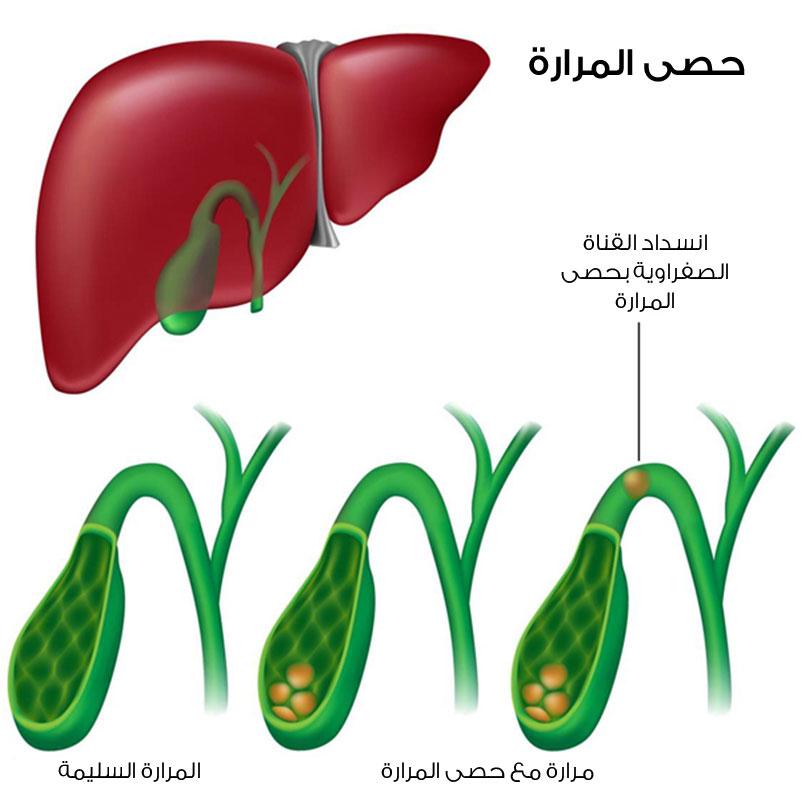 بالصور اعراض المرارة , المرارة جزء صغير جدا في جسم الانسان 2221 1