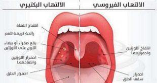علاج التهاب الحلق , اسرع علاج لالتهاب الحلق