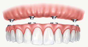 طقم اسنان , كيفيه عمل طقم اسنان