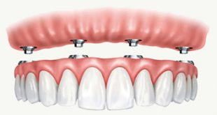 بالصور طقم اسنان , كيفيه عمل طقم اسنان 3748 1 310x165