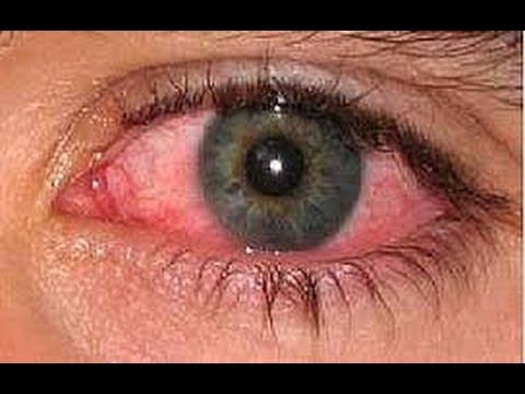صورة علاج حساسية العين , طرق معالجة حساسية العين