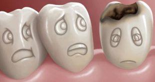 علاج تسوس الاسنان , العلاج الامثل لتسوس الاسنان