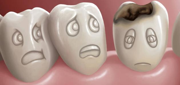 صور علاج تسوس الاسنان , العلاج الامثل لتسوس الاسنان