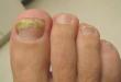 صور امراض الاظافر , تعرف على الامراض التى تصيب الاظافر