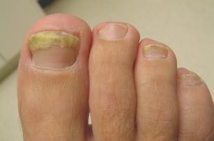 صورة امراض الاظافر , تعرف على الامراض التى تصيب الاظافر