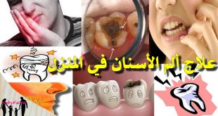 علاج وجع الاسنان , طرق جديدة لعلاج الم الاسنان و الضرس