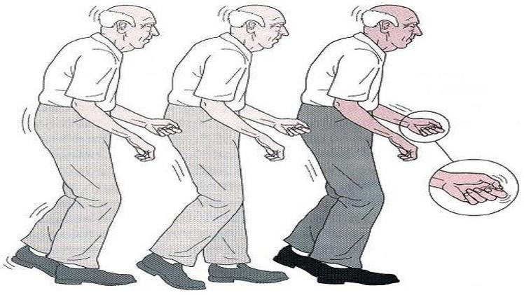 صورة مرض باركنسون , تعريف مرض الباركنسون