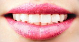 كيفية تبييض الاسنان , طرق الحصول علي اسنان صحية
