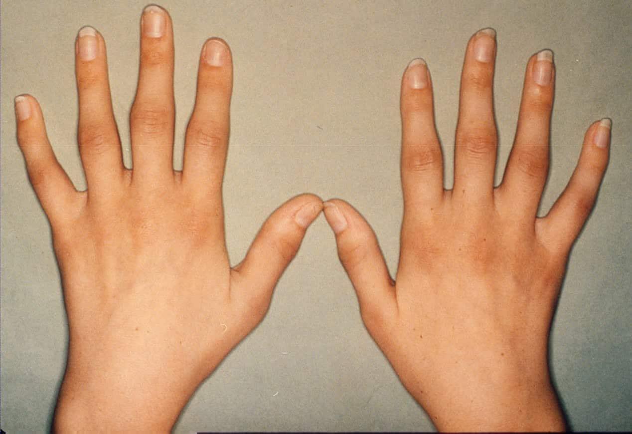 بالصور اعراض الروماتيزم , ما اهم اعراض مرض الروماتويد 113 1