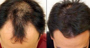 صوره علاج تساقط الشعر للرجال , وصفات طبيعيه لعلاج تساقط الشعر