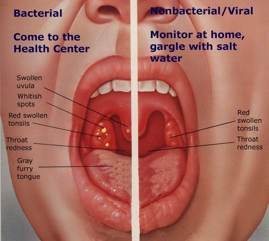 صورة علاج التهاب اللوزتين , افضل علاج لالتهاب اللوزتين