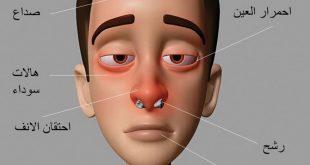 صوره علاج حساسية الانف , كيفية علاج حساسية الانف