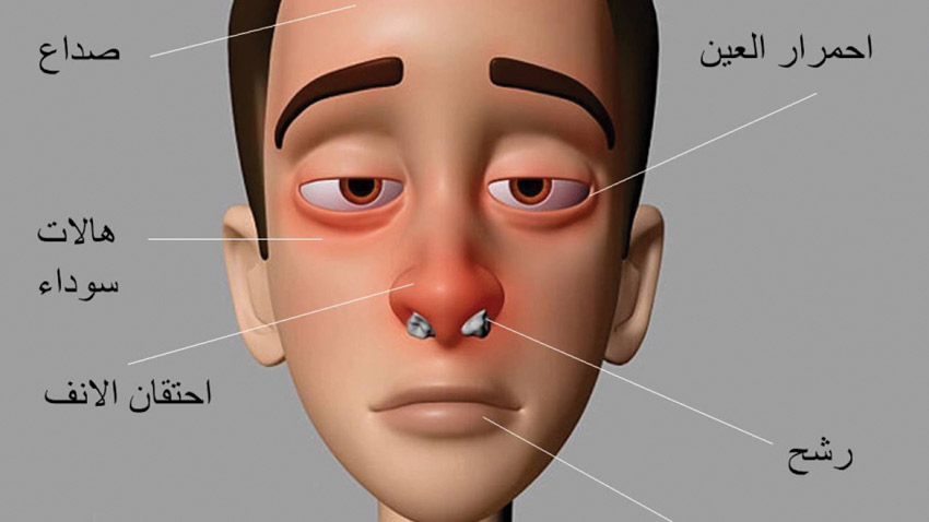 صورة علاج حساسية الانف , كيفية علاج حساسية الانف