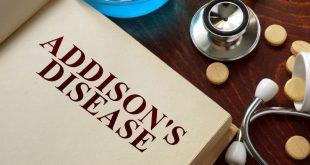 صوره مرض اديسون , ما هو مرض اديسون