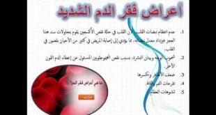 صورة اعراض فقر الدم , اخطر اعراض فقر الدم