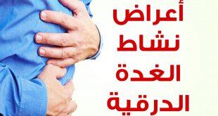 صوره اعراض الغدة الدرقية , اسباب خمول الغدد في جسم الانسان