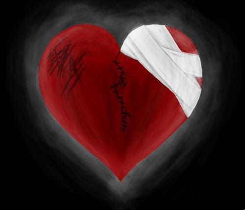 دقة قلب