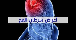 بالصور اعراض سرطان الدماغ , الاصابة بمرض اورام الدماغ واعراضه 613 2 310x165