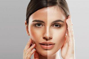 صورة تبييض الوجه , وصفات مجربة لتفتيح البشرة