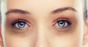 صورة الهالات السوداء تحت العين , التخلص من الهالات السوداء والحصول على عين جذابة