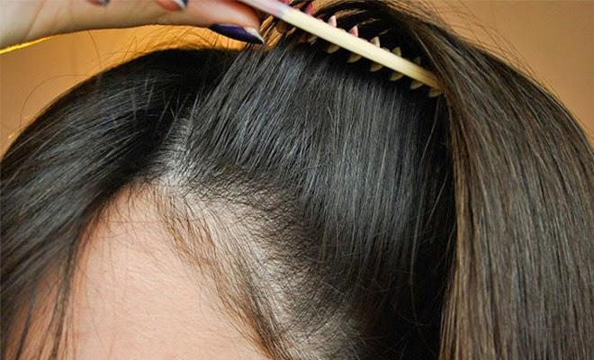 صور تكثيف الشعر الخفيف , وصفة طبيعية لحل مشكلة تساقط الشعر