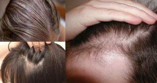 بالصور تكثيف الشعر الخفيف , وصفة طبيعية لحل مشكلة تساقط الشعر 3408 3 310x165