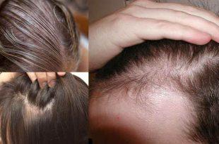 بالصور تكثيف الشعر الخفيف , وصفة طبيعية لحل مشكلة تساقط الشعر 3408 3 310x205