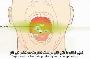 بالصور علاج رائحة الفم الكريهة , اذا كنت تعاني من رائحة كريهة بالفم ماذا تفعل 3410 3 310x205