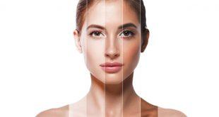 صور توحيد لون البشرة , كيفية ازاله البقع الداكنة من البشرة