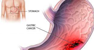 بالصور اعراض سرطان المعدة , كل ماتريد معرفته عن اعراض سرطان المعده 5075 3 310x165