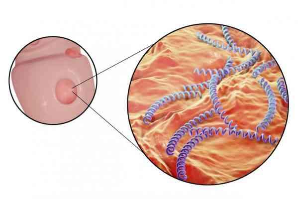 بالصور مرض الزهري , علاج الزهري 78 1