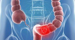 صور اعراض التهاب القولون , كيفية معرفة اذا كنت مصاب بتضخم القولون