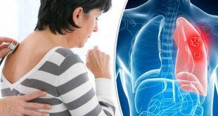 صور اعراض سرطان الرئة , علامات سرطان الرئه