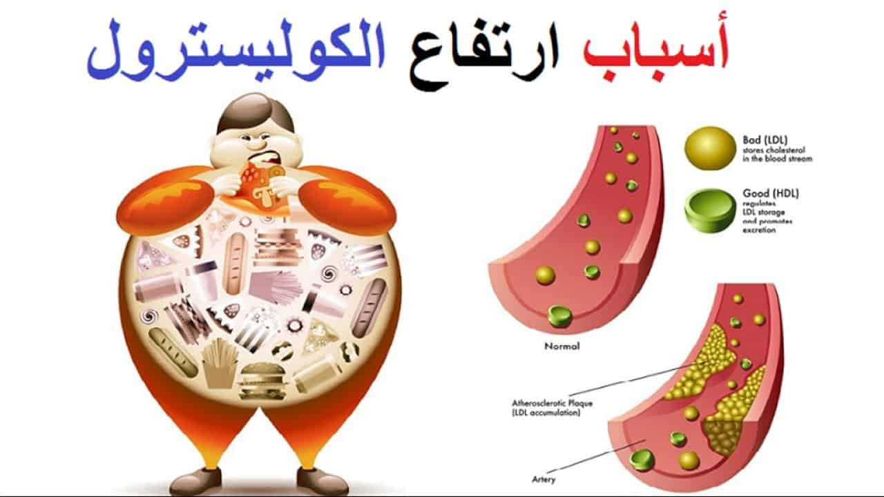 صورة علاج الكولسترول.ماهى اسباب ارتفاع الكولسترول