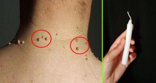 صور علاج الثاليل.علاج الثاليل عند النساء