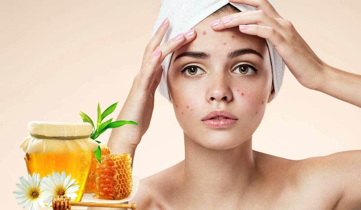 صورة فوائد العسل للوجه , ماهى فوائد قناع العسل للوجه 12271 3