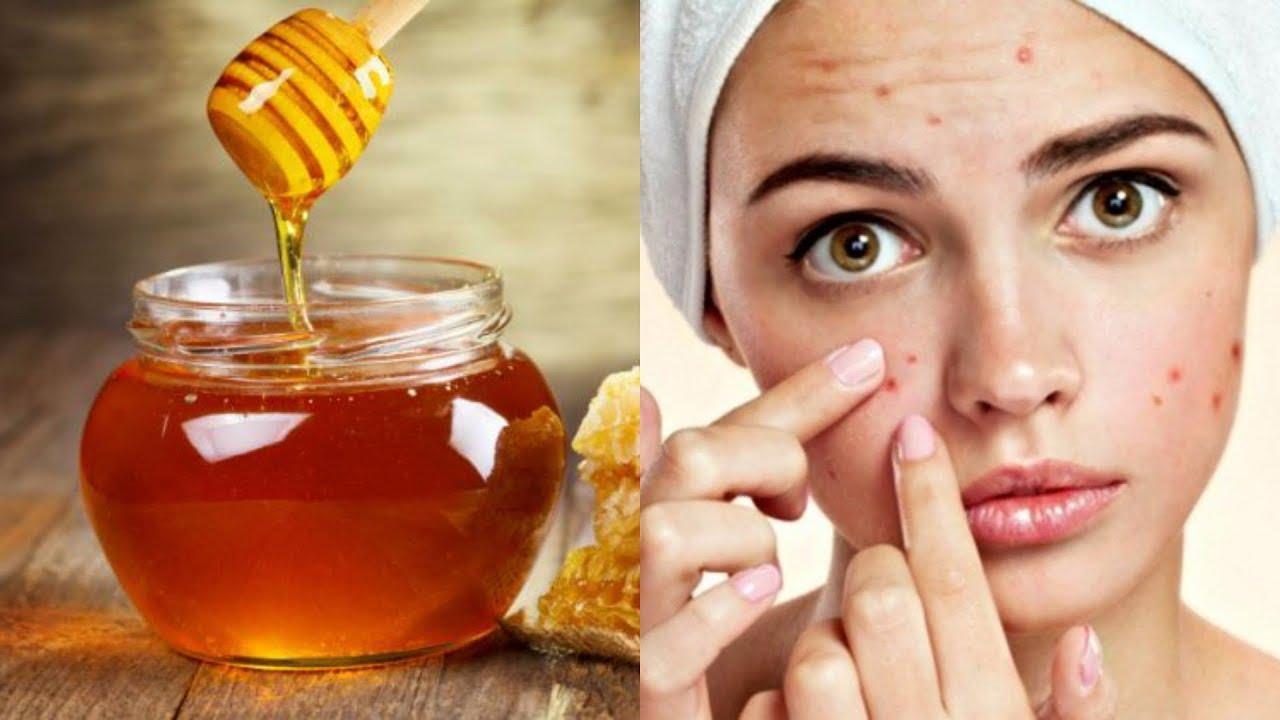 صورة فوائد العسل للوجه , ماهى فوائد قناع العسل للوجه