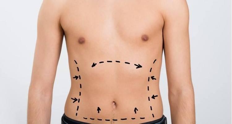 صورة عملية نحت الجسم , تعريف شامل لعمليه تحسين الجسد