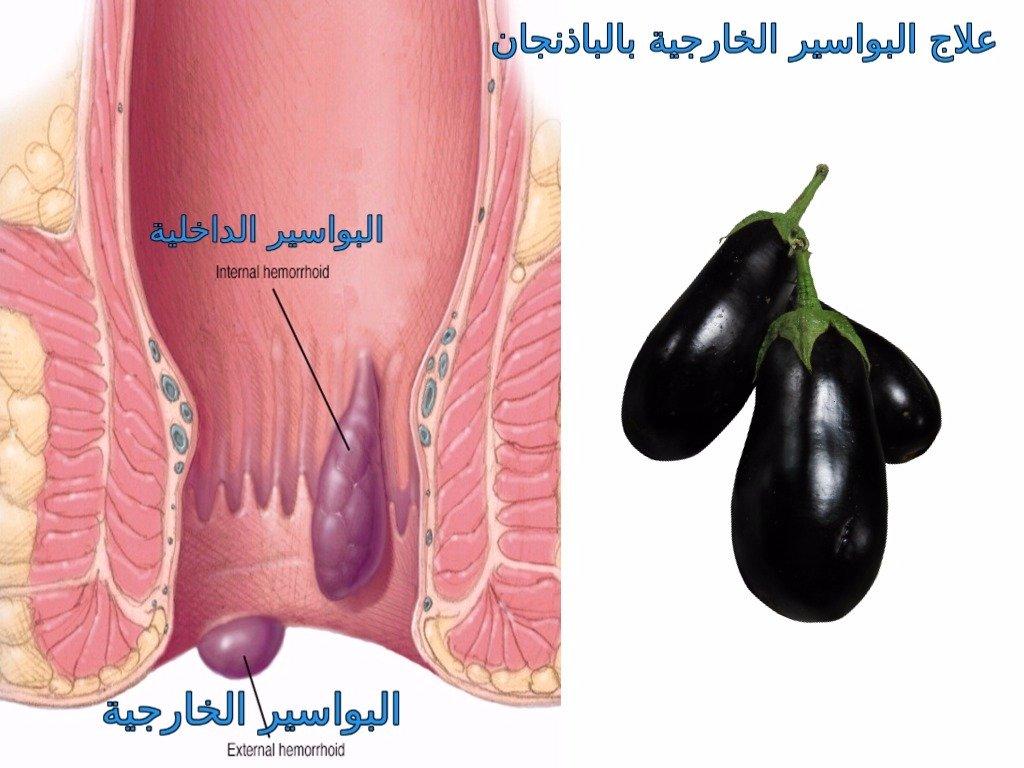 صور علاج البواسير , ماهى طرق علاج البواسير