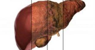 صور علاج تليف الكبد.ماهى اسباب تليف الكبد
