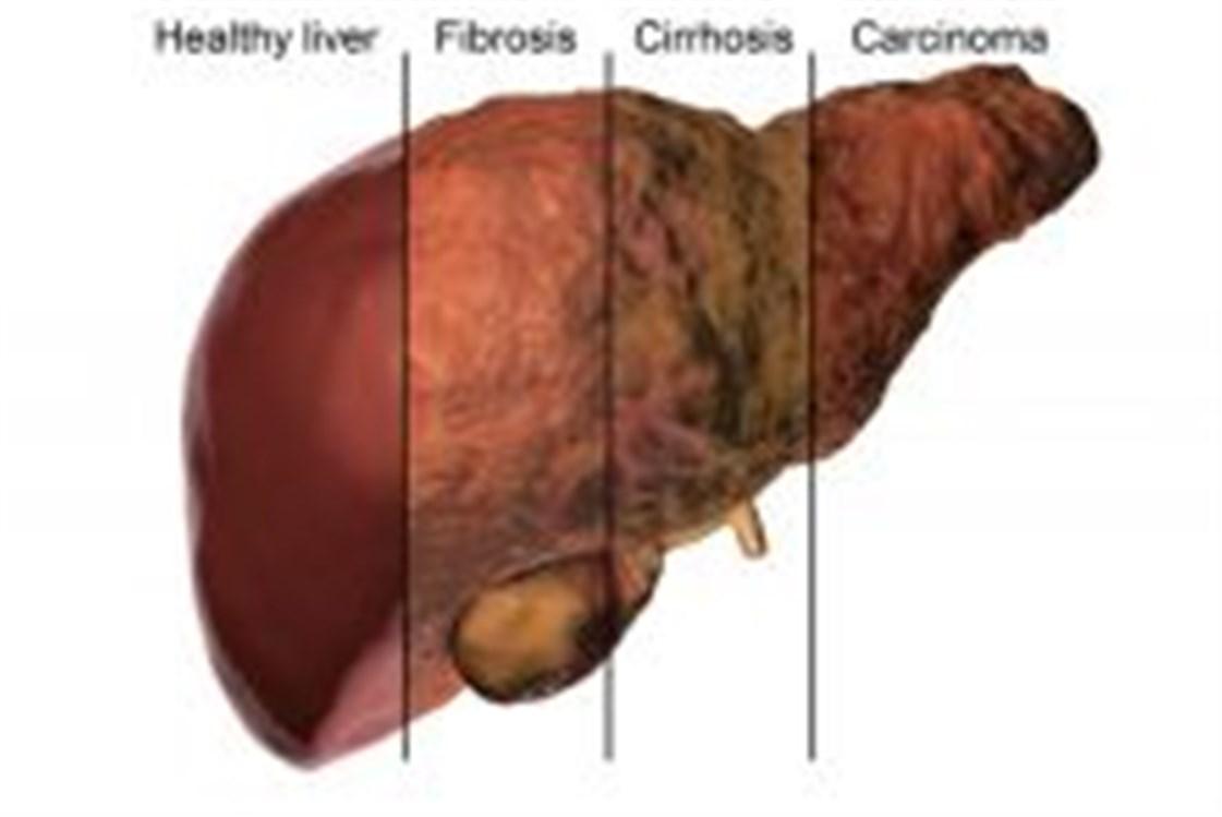 صورة علاج تليف الكبد.ماهى اسباب تليف الكبد