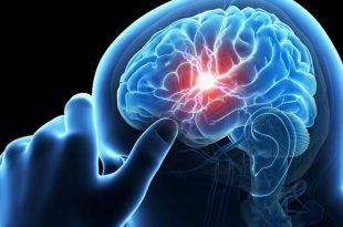 صورة علاج موت خلايا المخ , ماهى عوامل تلف المخ