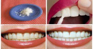 اجعل اسنانك ناصعة البياض خلطات تبيض الاسنان