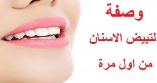وصفة لتبيض الاسنان من اول مرة , تعالى تعرفى ازاى نبيضى اسنانك بطريقه سريعه هتنبهرى بالنتيجه
